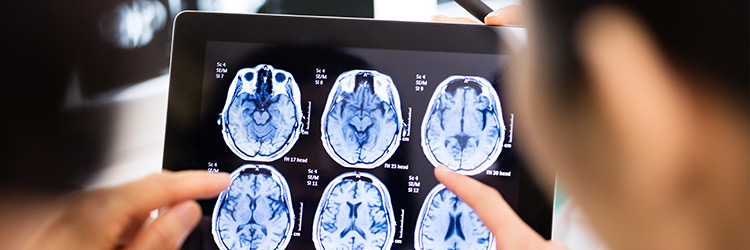 Neurovascular Neurosurgery & Stroke Care Header Image from Crouse Medical Practice in Syracuse NY