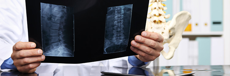 Interventional Spine and Pain Management Header Image from Crouse Medical Practice in Syracuse NY